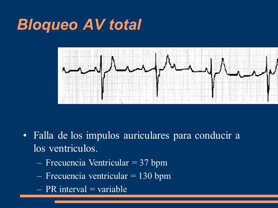 Bloqueo AV total Falla de los impulos auriculares para conducir a los ventriculos. Frecuencia Ventricular = 37 bpm.