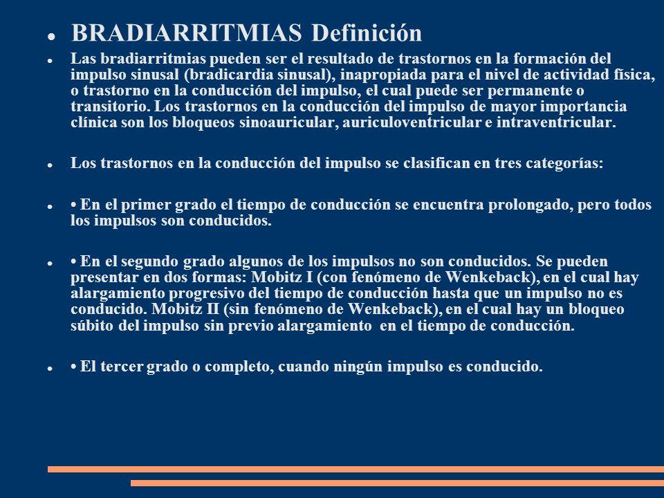 BRADIARRITMIAS Definición