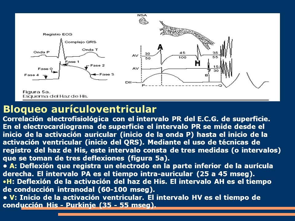 Bloqueo aurículoventricular
