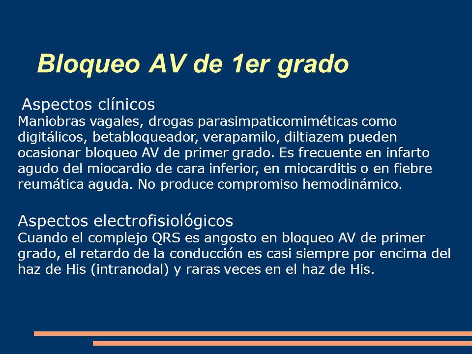 Bloqueo AV de 1er grado Aspectos electrofisiológicos