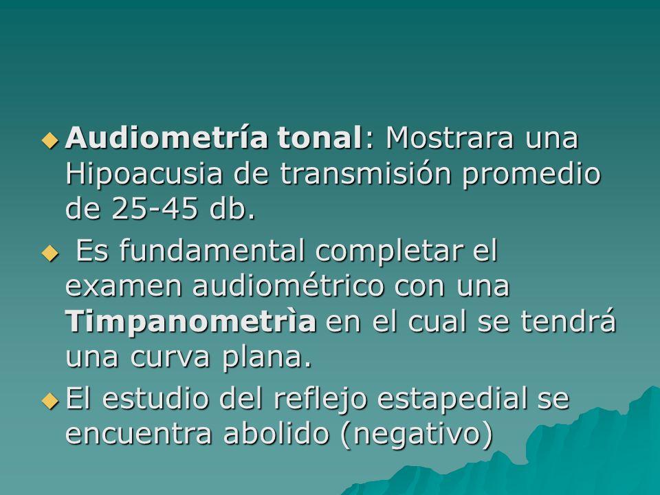 Audiometría tonal: Mostrara una Hipoacusia de transmisión promedio de 25-45 db.