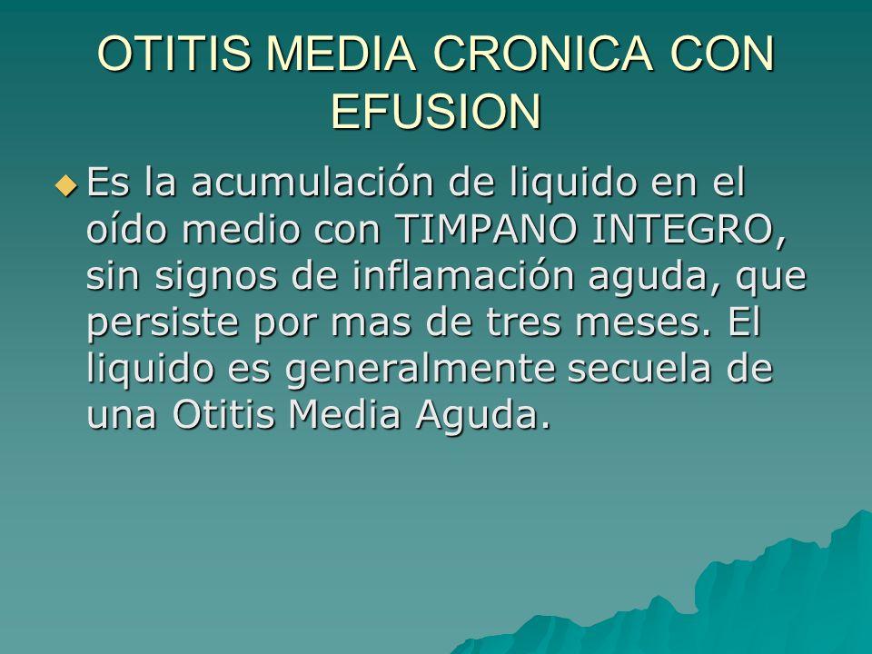 OTITIS MEDIA CRONICA CON EFUSION