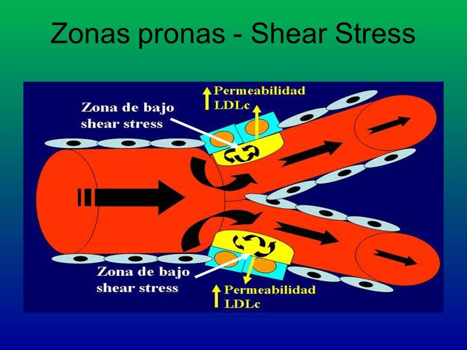 Zonas pronas - Shear Stress