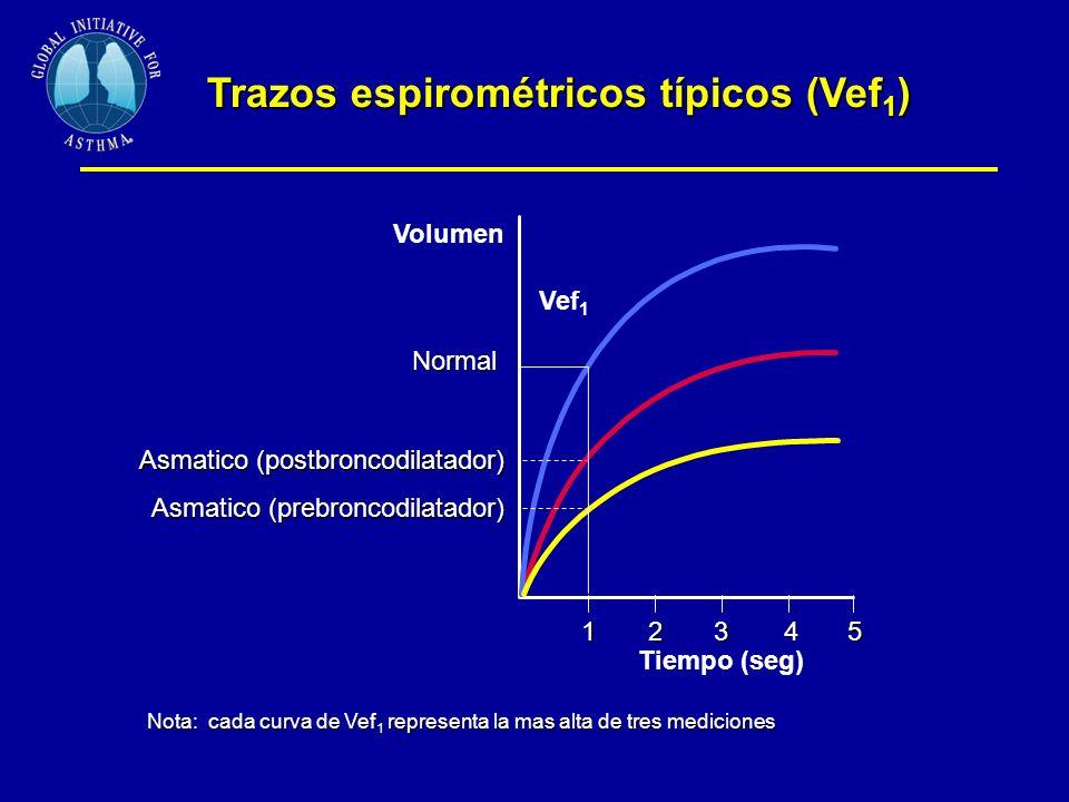 Trazos espirométricos típicos (Vef1)