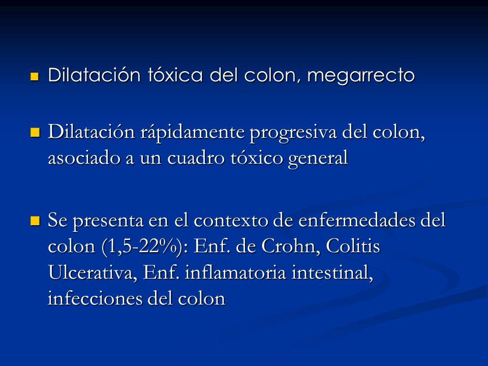 Dilatación tóxica del colon, megarrecto