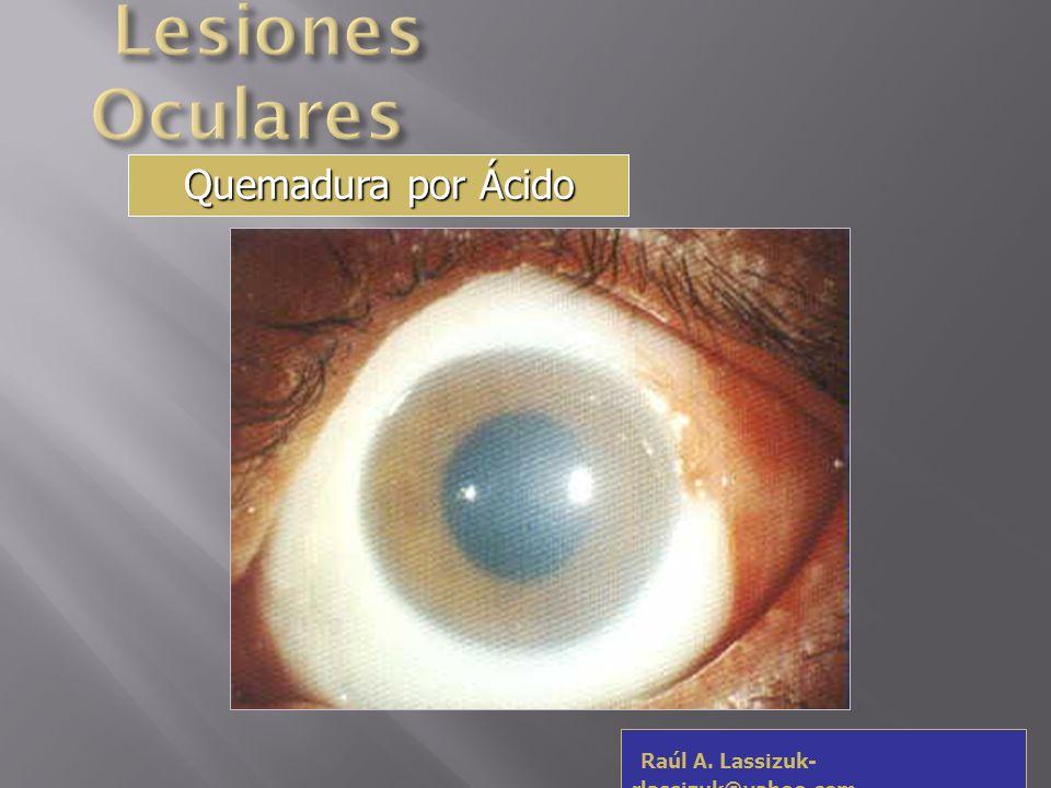 Lesiones Oculares Quemadura por Ácido