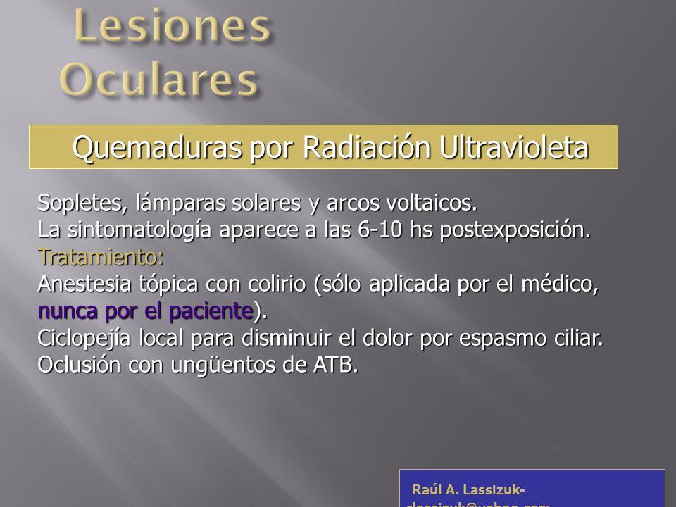 Lesiones Oculares Quemaduras por Radiación Ultravioleta