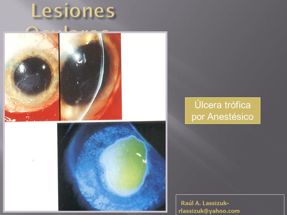 Úlcera trófica por Anestésico