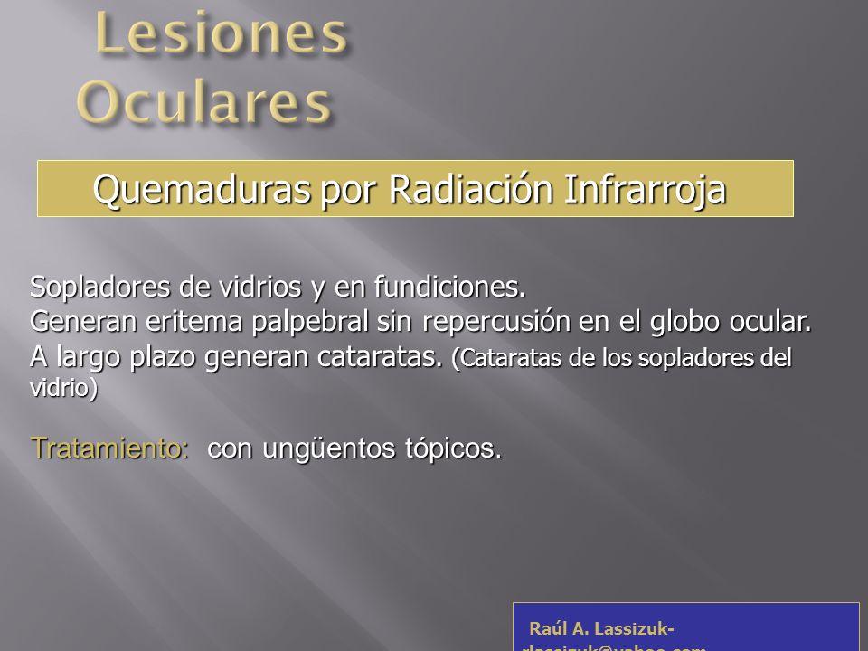 Lesiones Oculares Quemaduras por Radiación Infrarroja