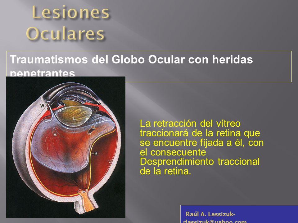 Lesiones OcularesTraumatismos del Globo Ocular con heridas penetrantes.