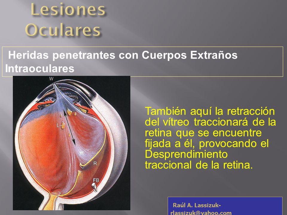 Lesiones Oculares Heridas penetrantes con Cuerpos Extraños Intraoculares.