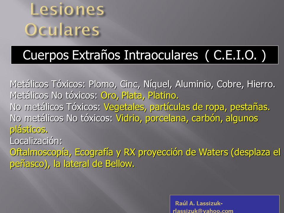 Lesiones Oculares Cuerpos Extraños Intraoculares ( C.E.I.O. )