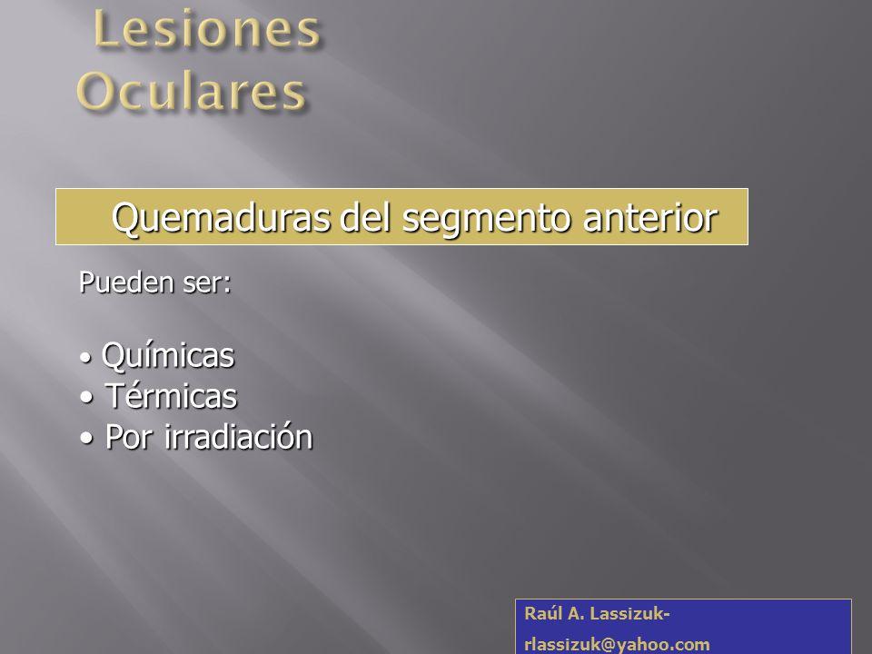 Lesiones Oculares Quemaduras del segmento anterior Térmicas