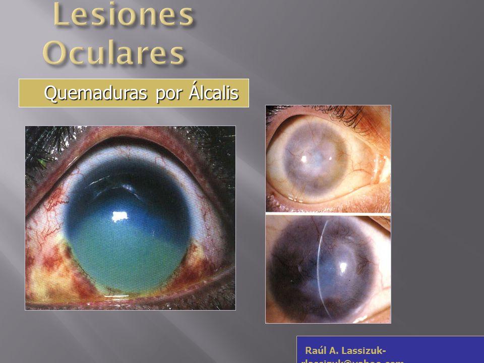 Lesiones Oculares Quemaduras por Álcalis