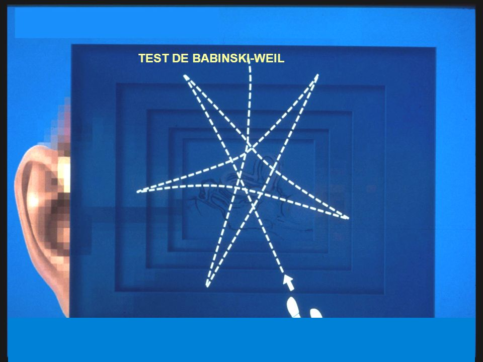 TEST DE BABINSKI-WEIL 23