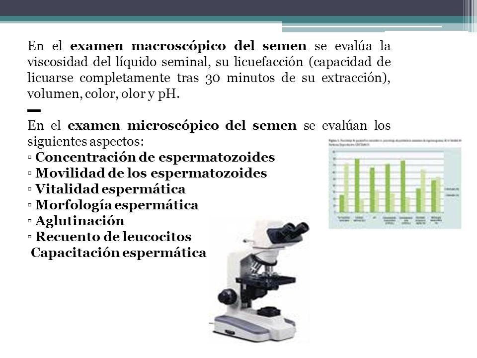 En el examen macroscópico del semen se evalúa la viscosidad del líquido seminal, su licuefacción (capacidad de licuarse completamente tras 30 minutos de su extracción), volumen, color, olor y pH.