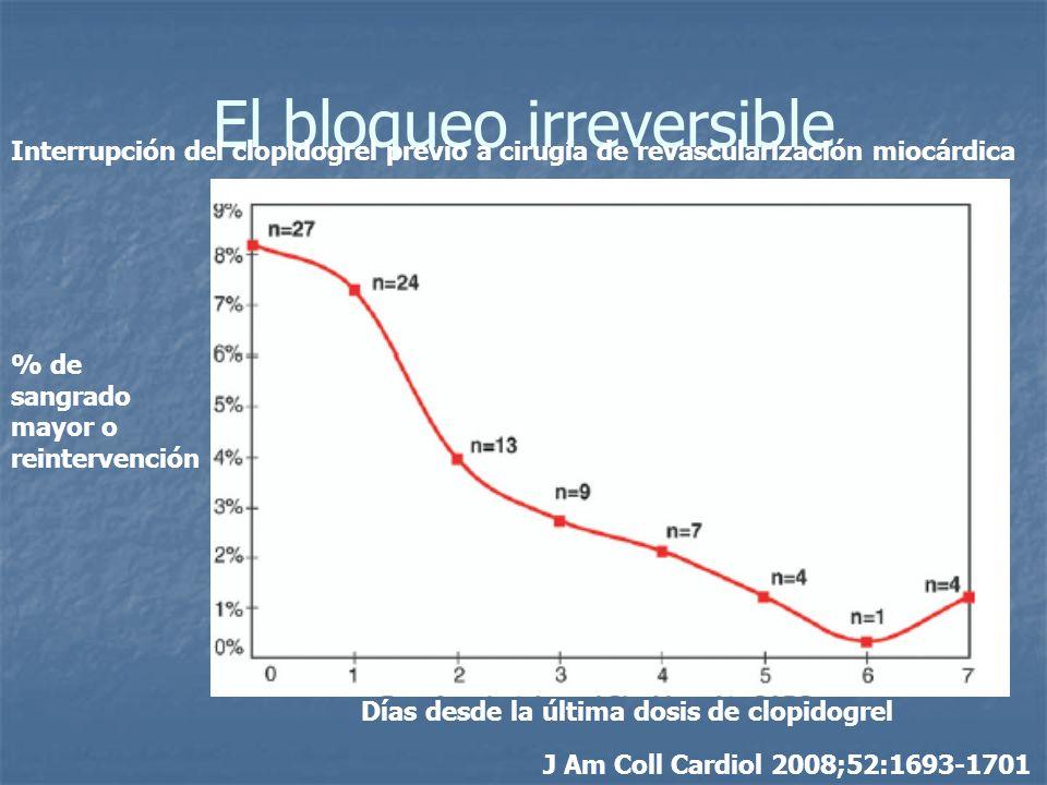 El bloqueo irreversible