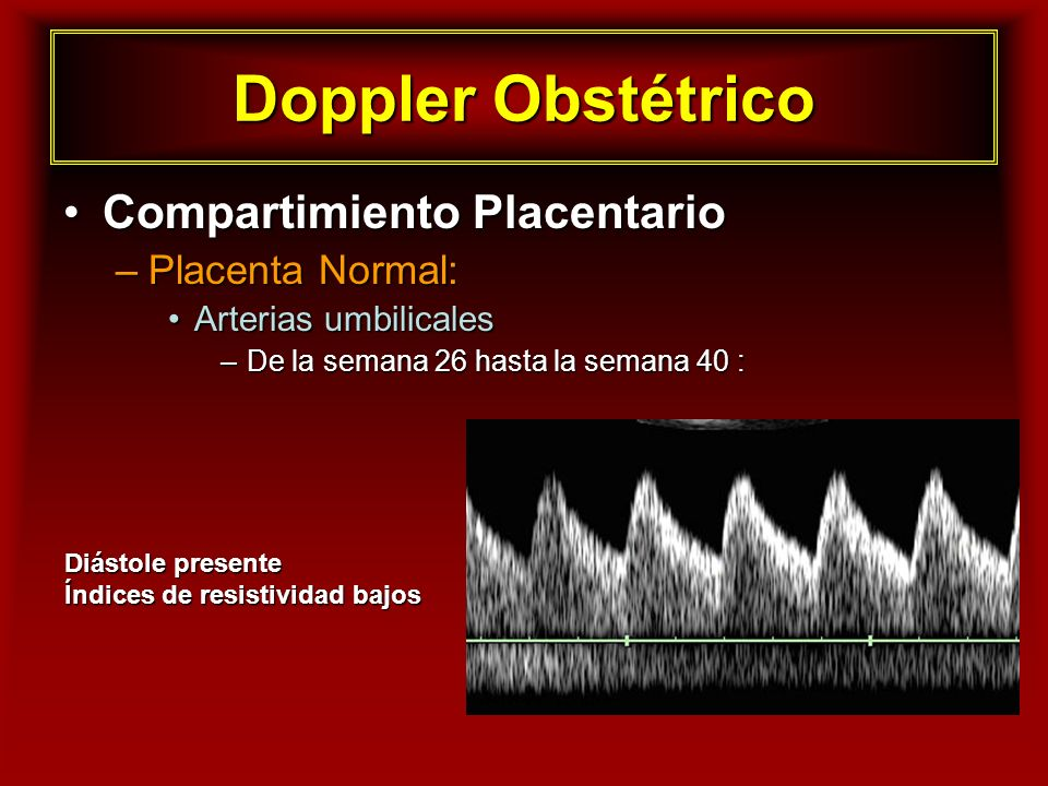 Doppler Obstétrico Compartimiento Placentario Placenta Normal: