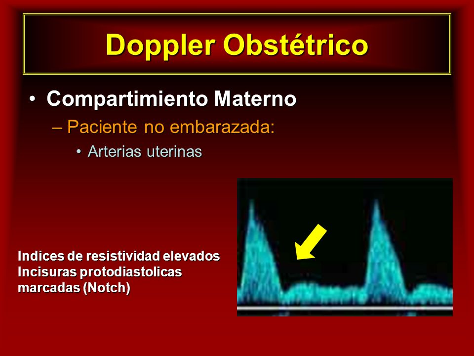 Doppler Obstétrico Compartimiento Materno Paciente no embarazada: