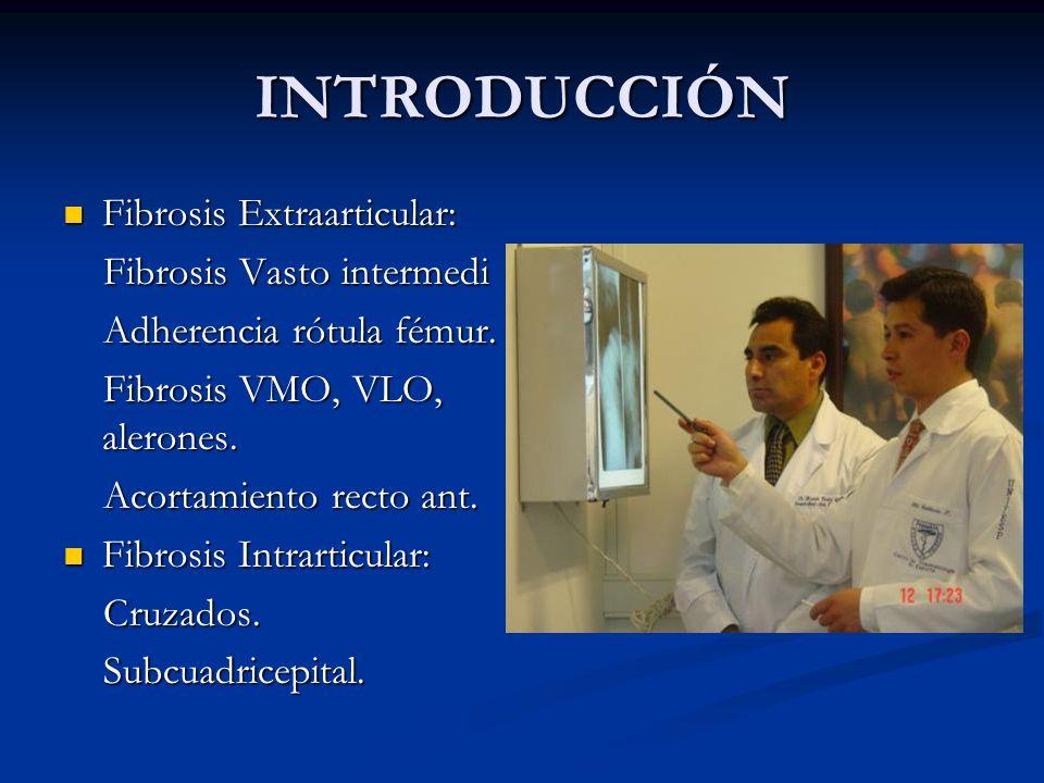 INTRODUCCIÓN Fibrosis Extraarticular: Fibrosis Vasto intermedi