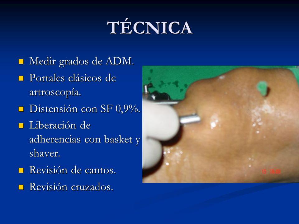 TÉCNICA Medir grados de ADM. Portales clásicos de artroscopía.