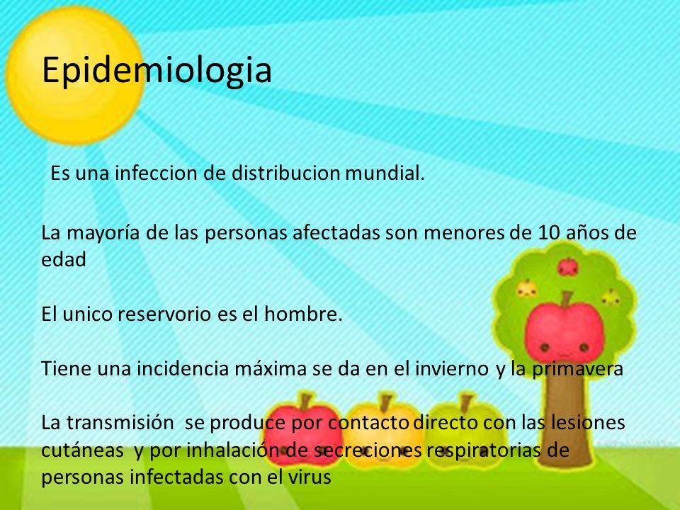 Epidemiologia Es una infeccion de distribucion mundial