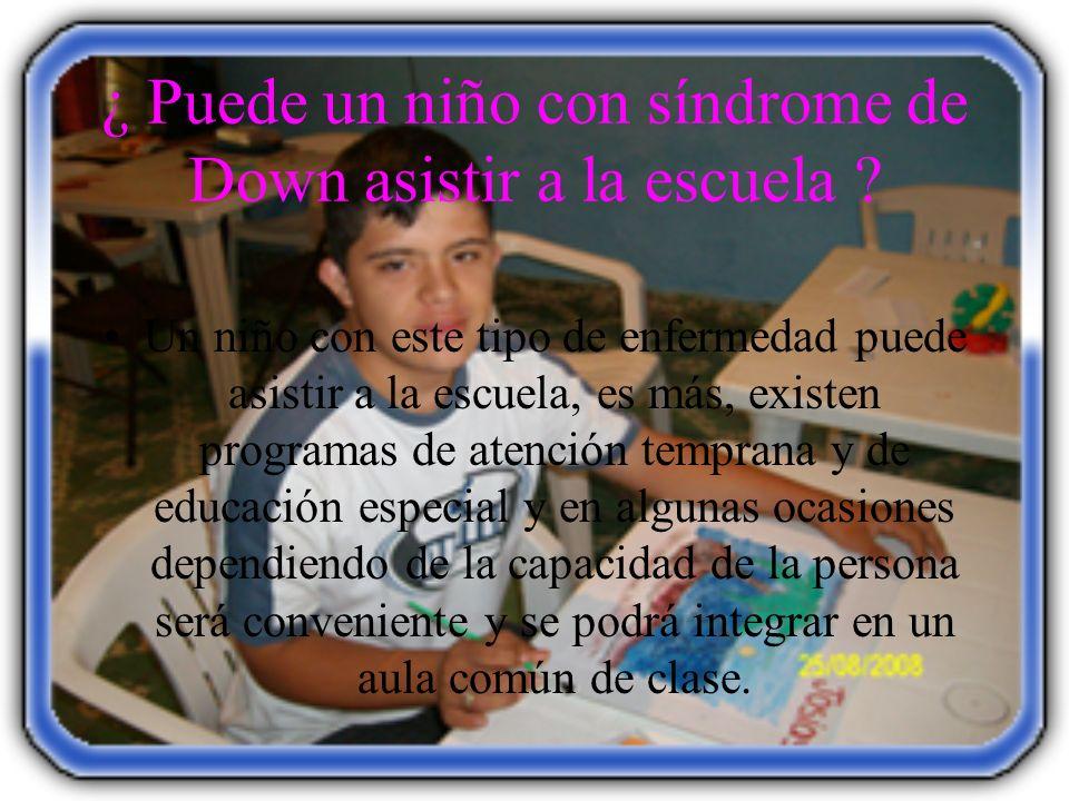 ¿ Puede un niño con síndrome de Down asistir a la escuela