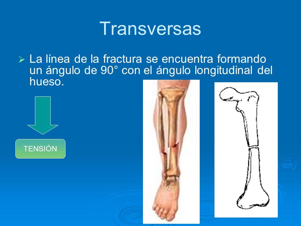 Excelente Fractura Transversal Ideas - Anatomía de Las Imágenesdel ...