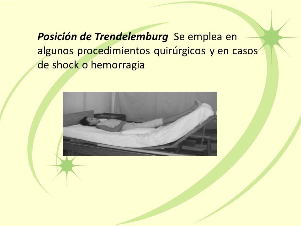 Posición de Trendelemburg Se emplea en algunos procedimientos quirúrgicos y en casos de shock o hemorragia