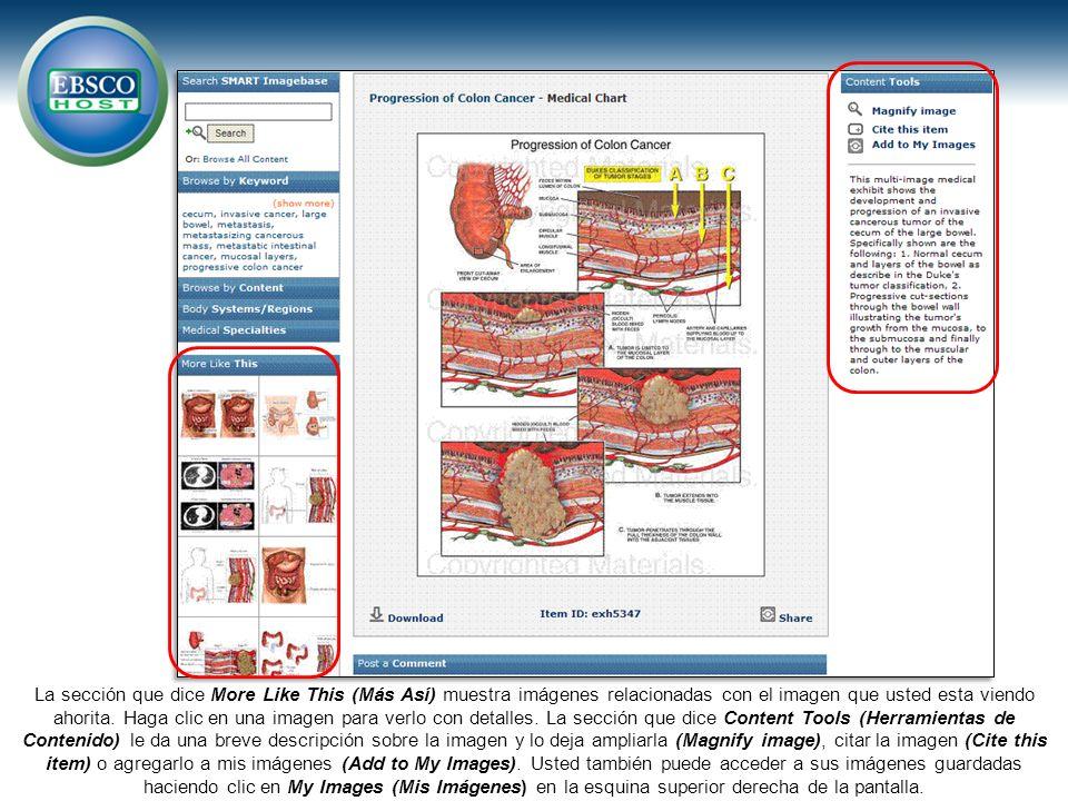 La sección que dice More Like This (Más Así) muestra imágenes relacionadas con el imagen que usted esta viendo ahorita.