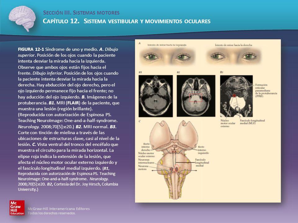FIGURA 12-1 Síndrome de uno y medio. A. Dibujo superior