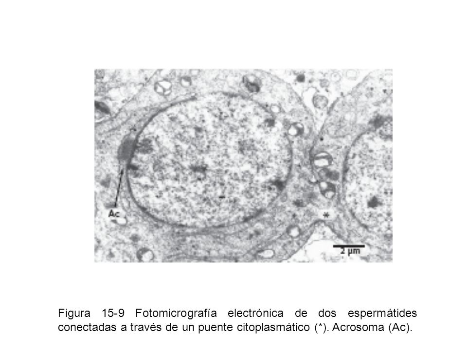 Figura 15-9 Fotomicrografía electrónica de dos espermátides conectadas a través de un puente citoplasmático (*).