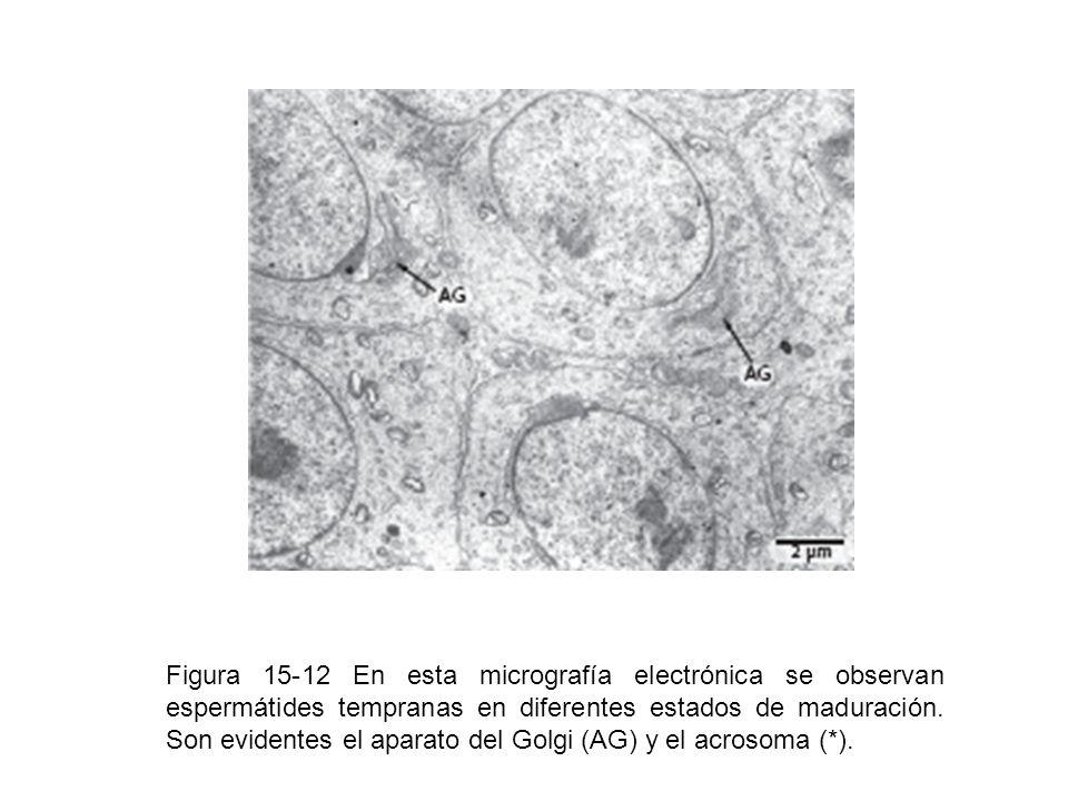 Figura 15-12 En esta micrografía electrónica se observan espermátides tempranas en diferentes estados de maduración.