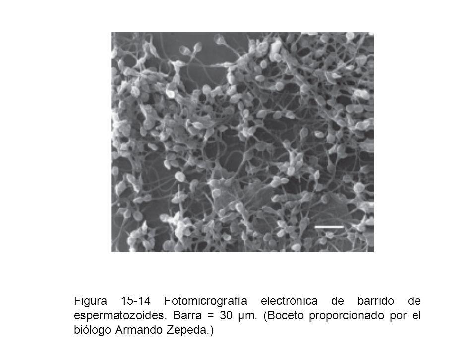 Figura 15-14 Fotomicrografía electrónica de barrido de espermatozoides