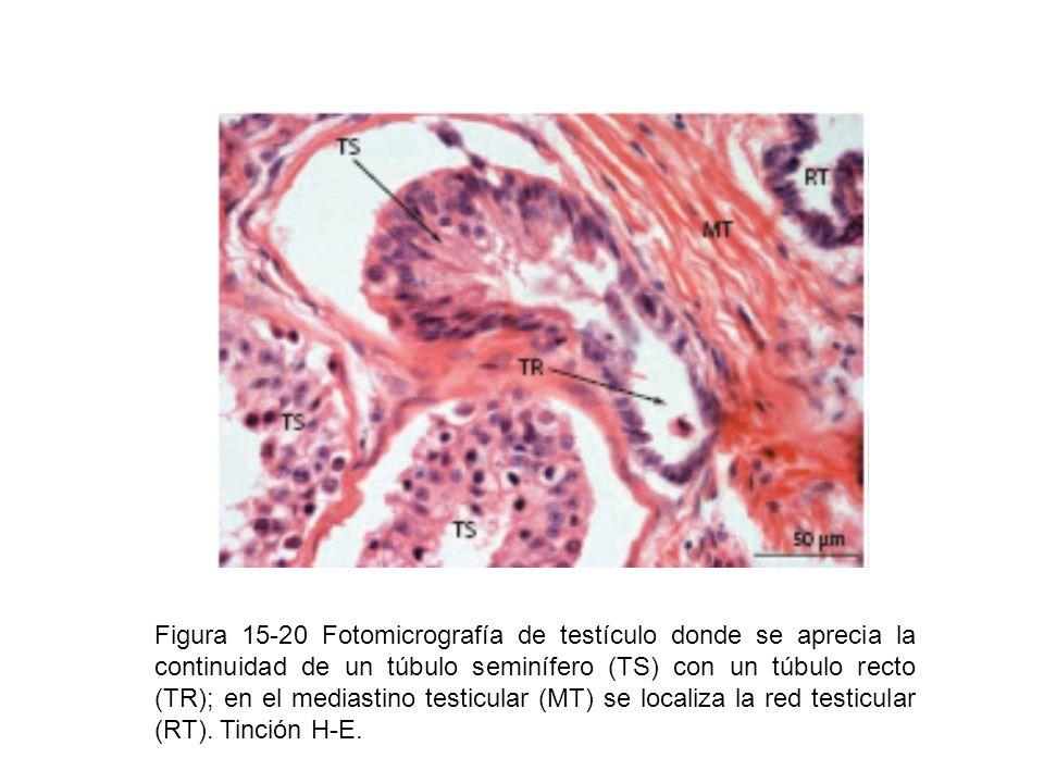 Figura 15-20 Fotomicrografía de testículo donde se aprecia la continuidad de un túbulo seminífero (TS) con un túbulo recto (TR); en el mediastino testicular (MT) se localiza la red testicular (RT).