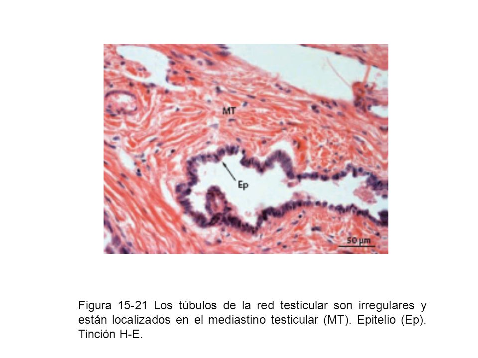 Figura 15-21 Los túbulos de la red testicular son irregulares y están localizados en el mediastino testicular (MT).