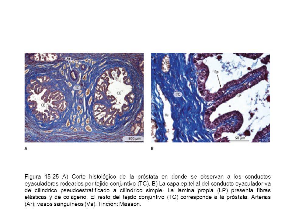 Figura 15-25 A) Corte histológico de la próstata en donde se observan a los conductos eyaculadores rodeados por tejido conjuntivo (TC).