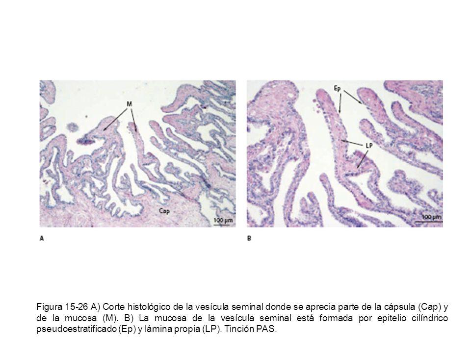 Figura 15-26 A) Corte histológico de la vesícula seminal donde se aprecia parte de la cápsula (Cap) y de la mucosa (M).