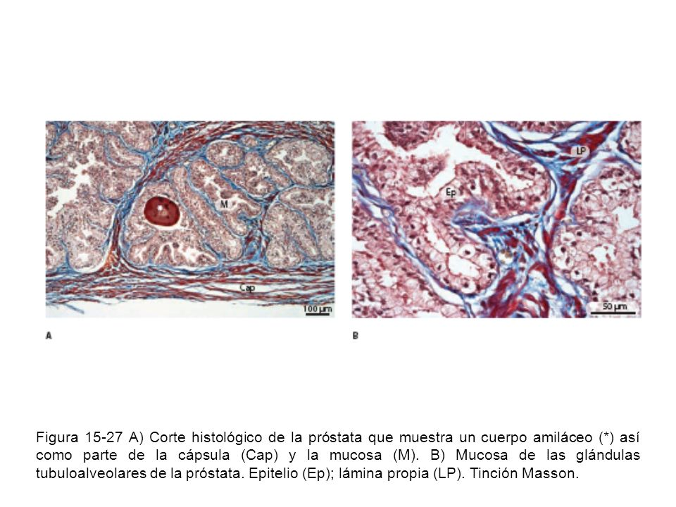 Figura 15-27 A) Corte histológico de la próstata que muestra un cuerpo amiláceo (*) así como parte de la cápsula (Cap) y la mucosa (M).