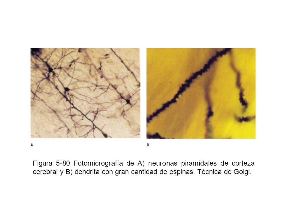 Figura 5-80 Fotomicrografía de A) neuronas piramidales de corteza cerebral y B) dendrita con gran cantidad de espinas.