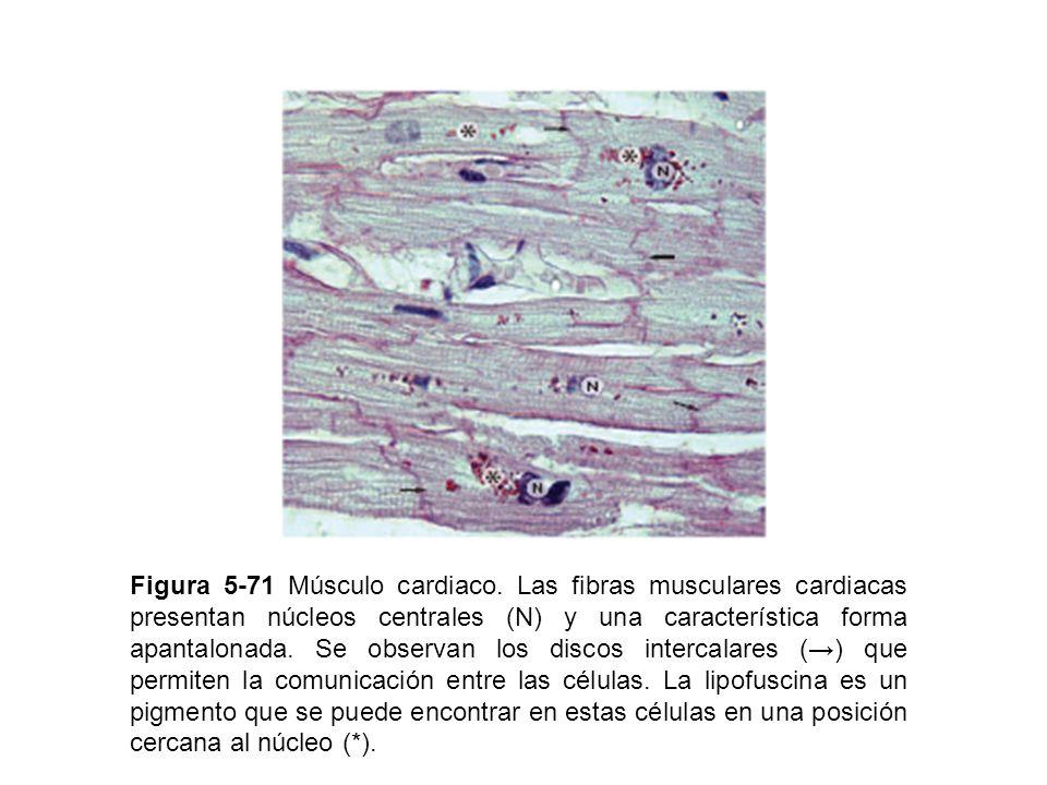 Figura 5-71 Músculo cardiaco