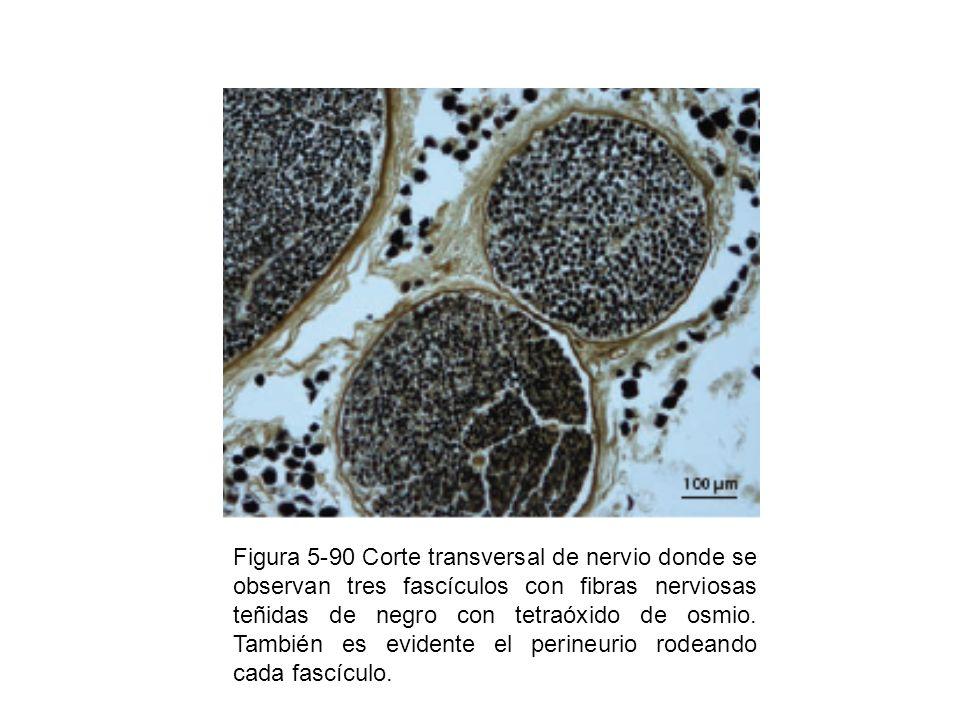 Figura 5-90 Corte transversal de nervio donde se observan tres fascículos con fibras nerviosas teñidas de negro con tetraóxido de osmio.