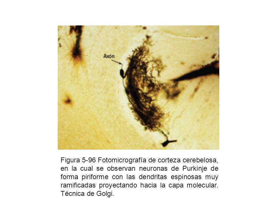 Figura 5-96 Fotomicrografía de corteza cerebelosa, en la cual se observan neuronas de Purkinje de forma piriforme con las dendritas espinosas muy ramificadas proyectando hacia la capa molecular.