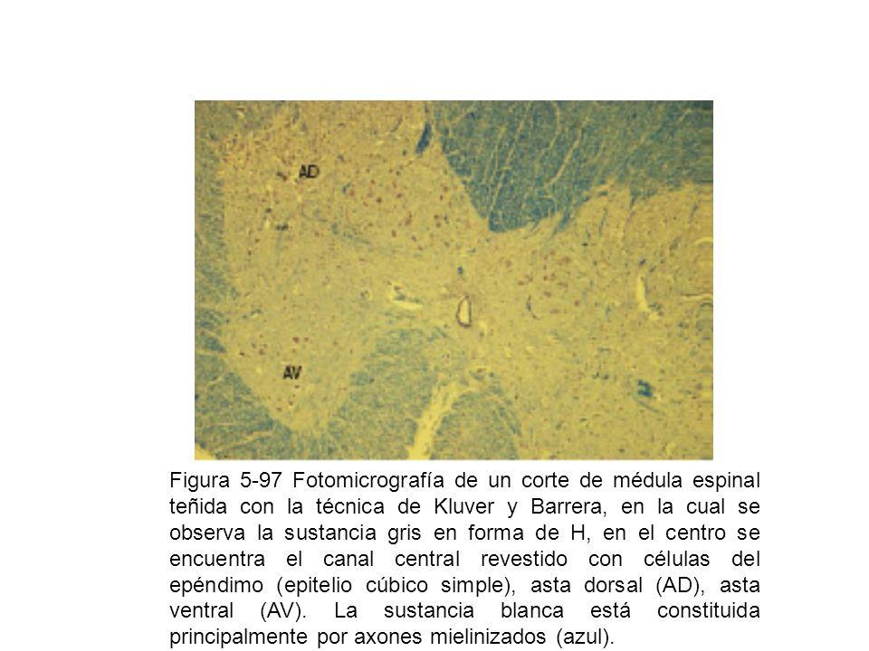 Figura 5-97 Fotomicrografía de un corte de médula espinal teñida con la técnica de Kluver y Barrera, en la cual se observa la sustancia gris en forma de H, en el centro se encuentra el canal central revestido con células del epéndimo (epitelio cúbico simple), asta dorsal (AD), asta ventral (AV).