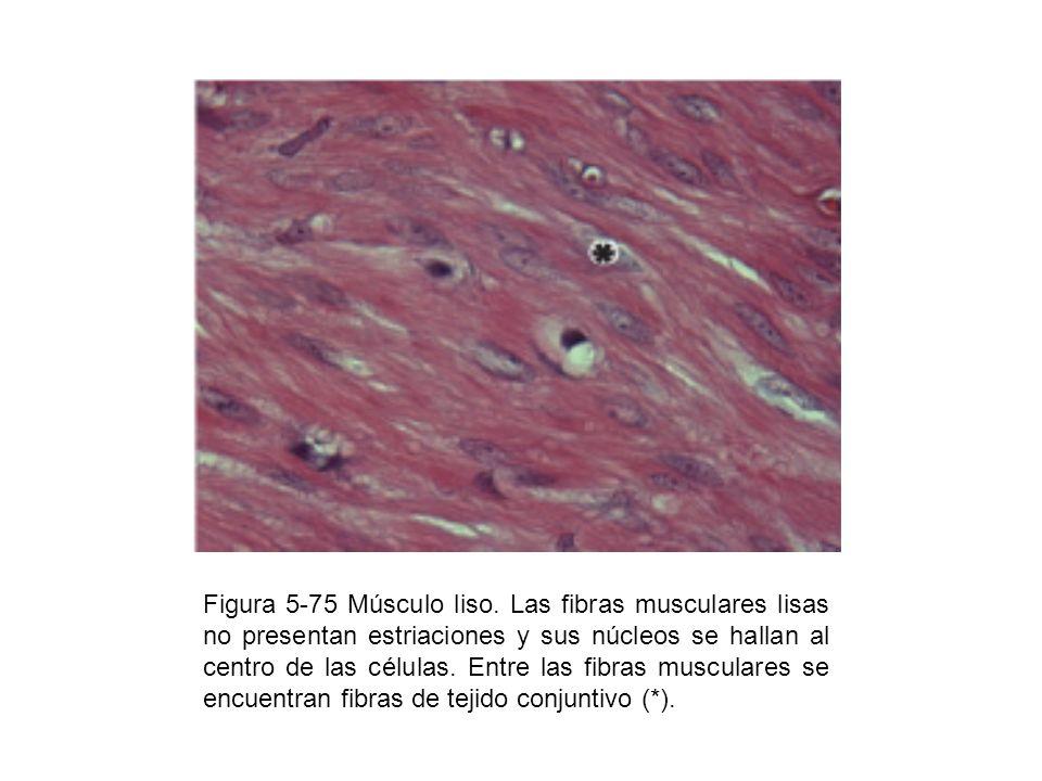 Figura 5-75 Músculo liso.