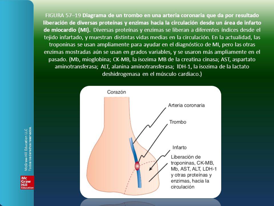 FIGURA 57–19 Diagrama de un trombo en una arteria coronaria que da por resultado liberación de diversas proteínas y enzimas hacia la circulación desde un área de infarto de miocardio (MI). Diversas proteínas y enzimas se liberan a diferentes índices desde el tejido infartado, y muestran distintas vidas medias en la circulación. En la actualidad, las troponinas se usan ampliamente para ayudar en el diagnóstico de MI, pero las otras enzimas mostradas aún se usan en grados variables, y se usaron más ampliamente en el pasado. (Mb, mioglobina; CK-MB, la isozima MB de la creatina cinasa; AST, aspartato