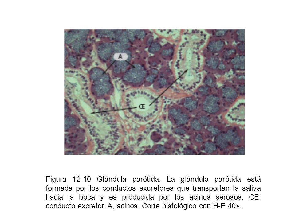Figura 12-10 Glándula parótida