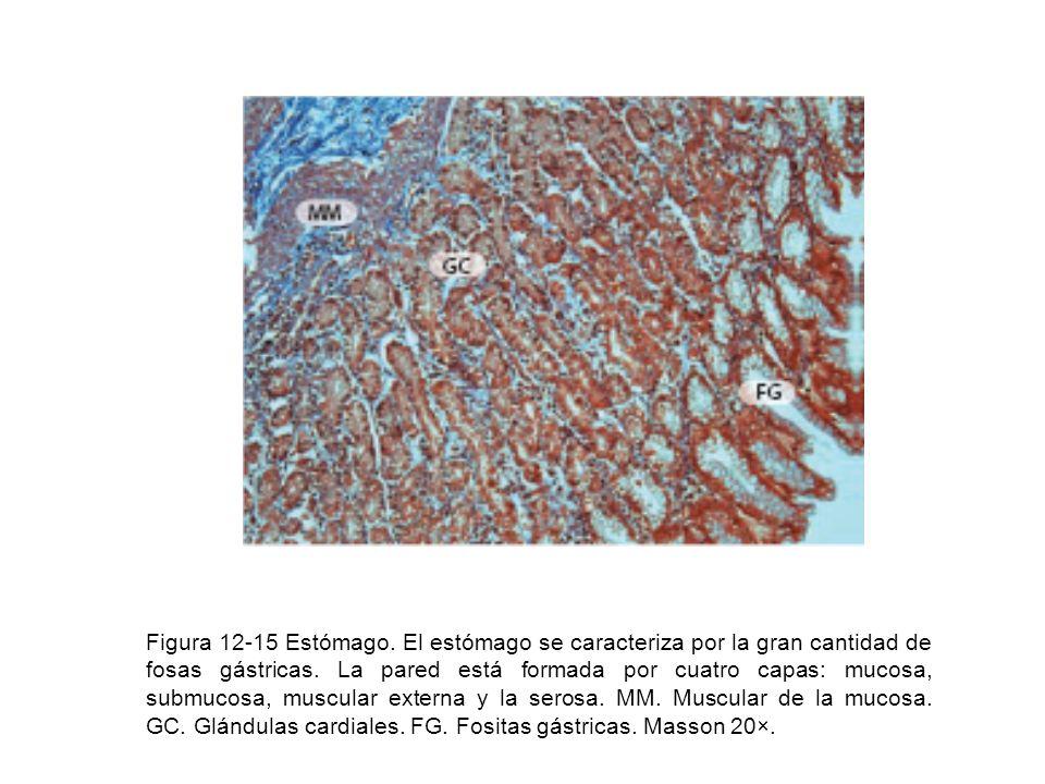 Figura 12-15 Estómago. El estómago se caracteriza por la gran cantidad de fosas gástricas.