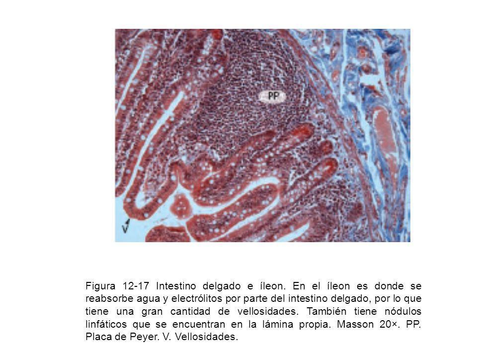 Figura 12-17 Intestino delgado e íleon
