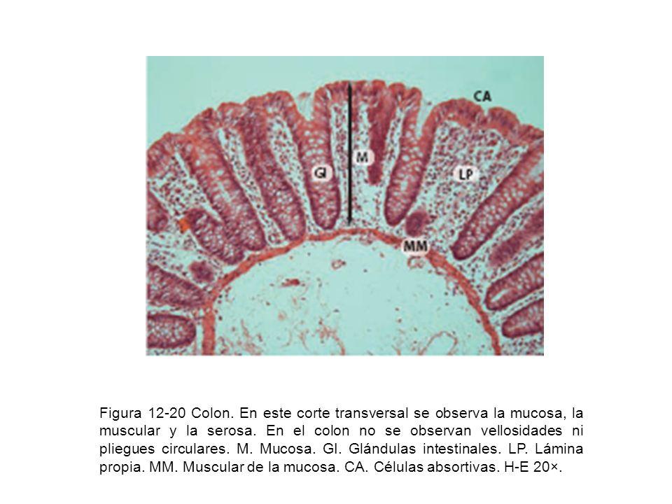 Figura 12-20 Colon. En este corte transversal se observa la mucosa, la muscular y la serosa.